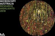 MICROSCOPY AUSTRALIA RESEARCH HIGHLIGHTS